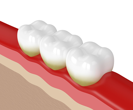 Digital illustration of teeth and gums in need of periodontal maintenance from Dr. Kurt Gibson, DDS, Winston-Salem, NC